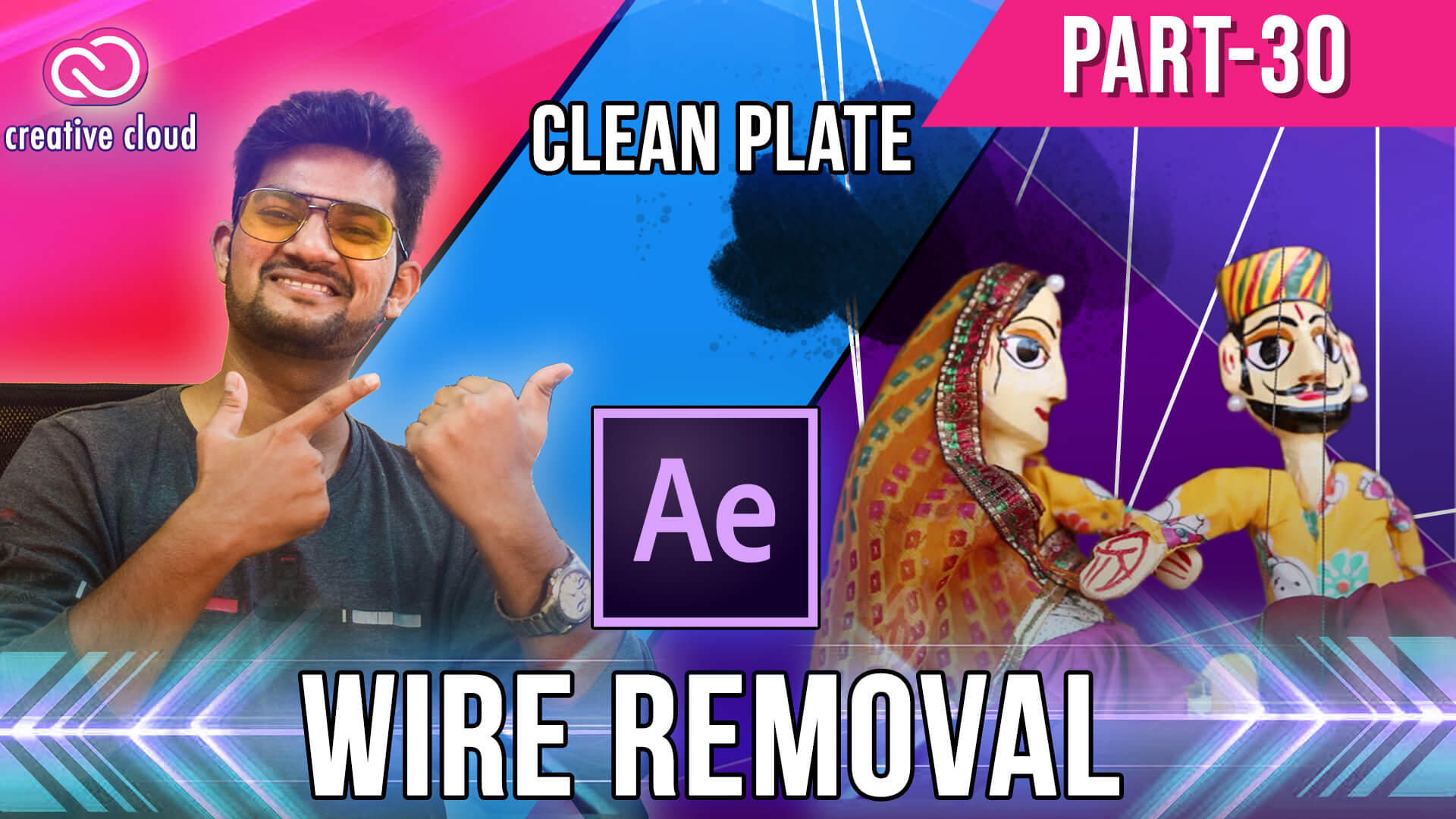 30 wire removal